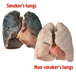 smokers lungs