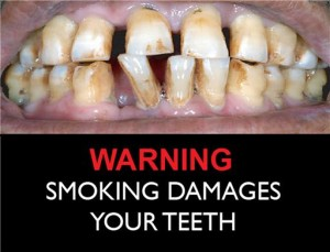 smoking-damage-to-teeth