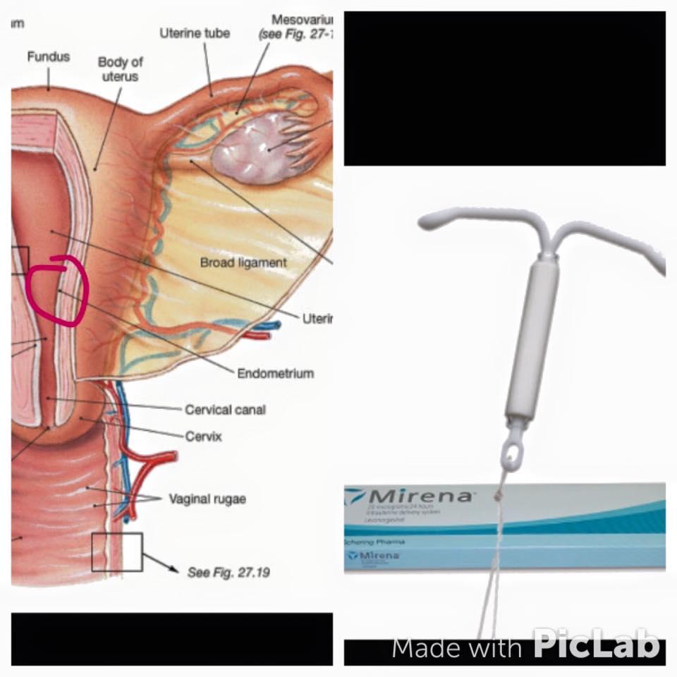 IUD image